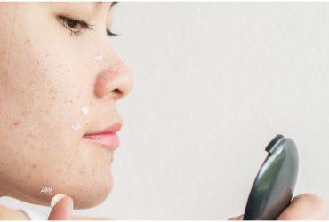 Problème d'acné, voici les causes et les solutions!